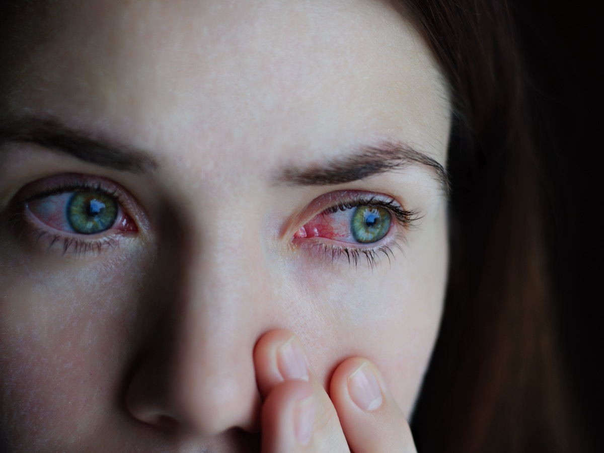 woman with red bloodshot eyes