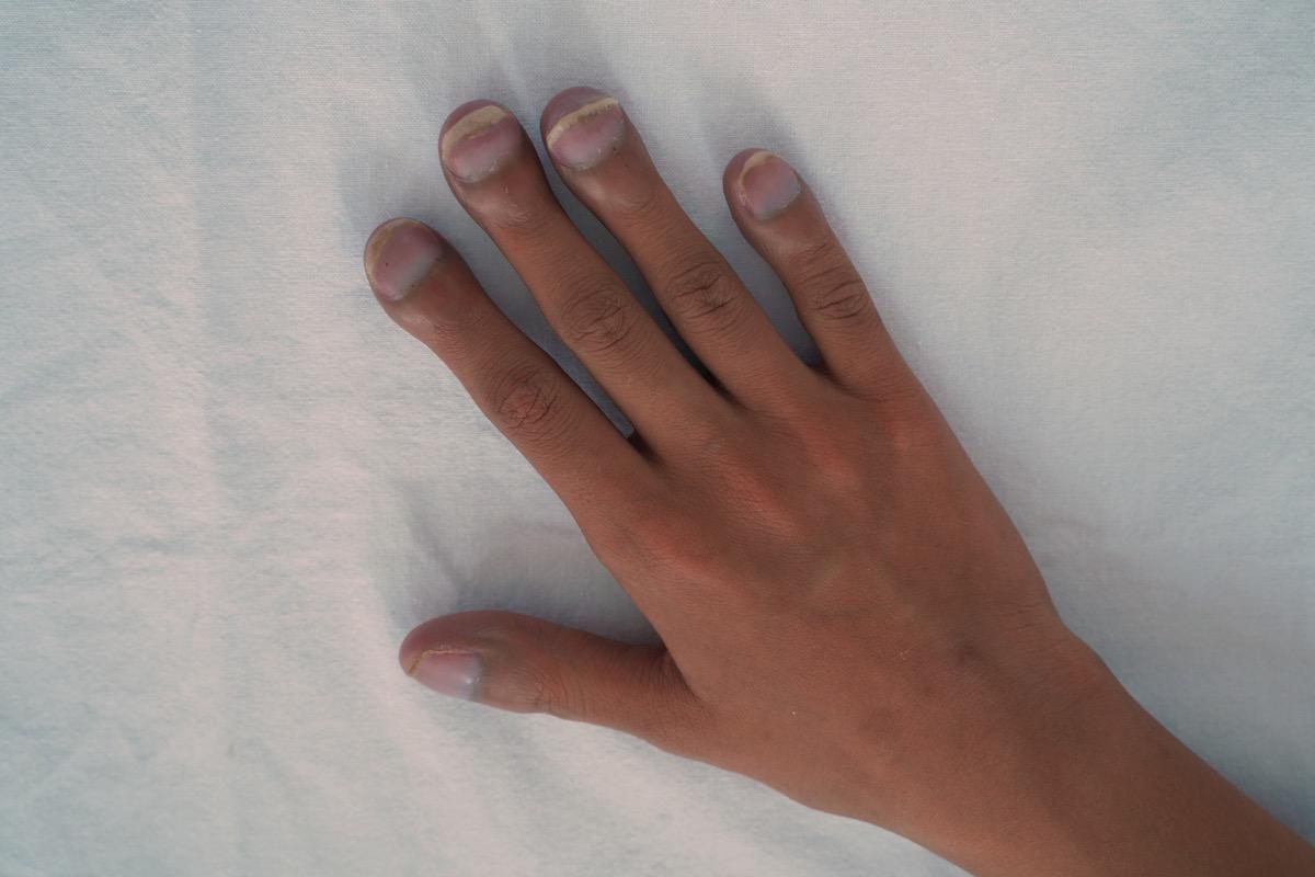 patients with big fingertips, clubbing