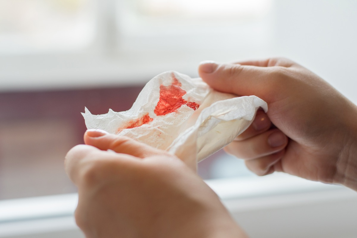 Photo of hands holding a napkin with blood