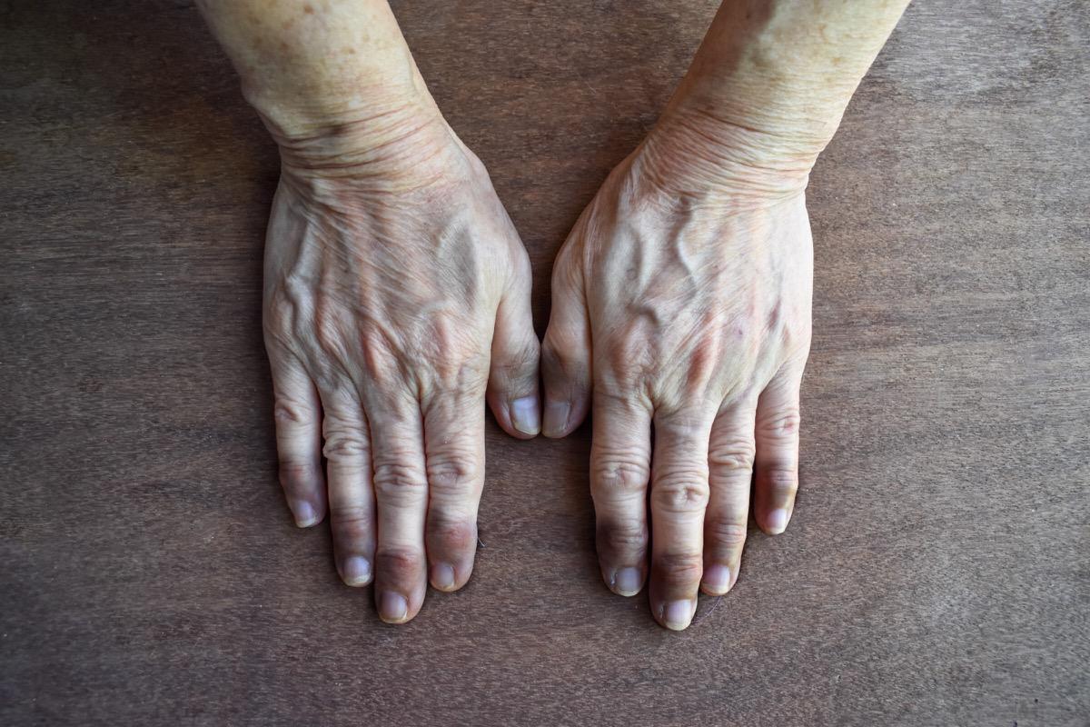 fingernails and fingertips blue, purple color