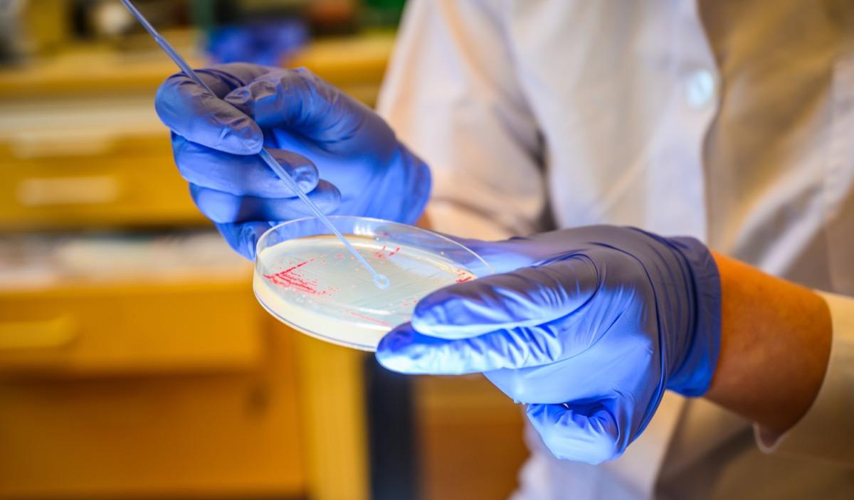 petri dish with e. coli bacteria