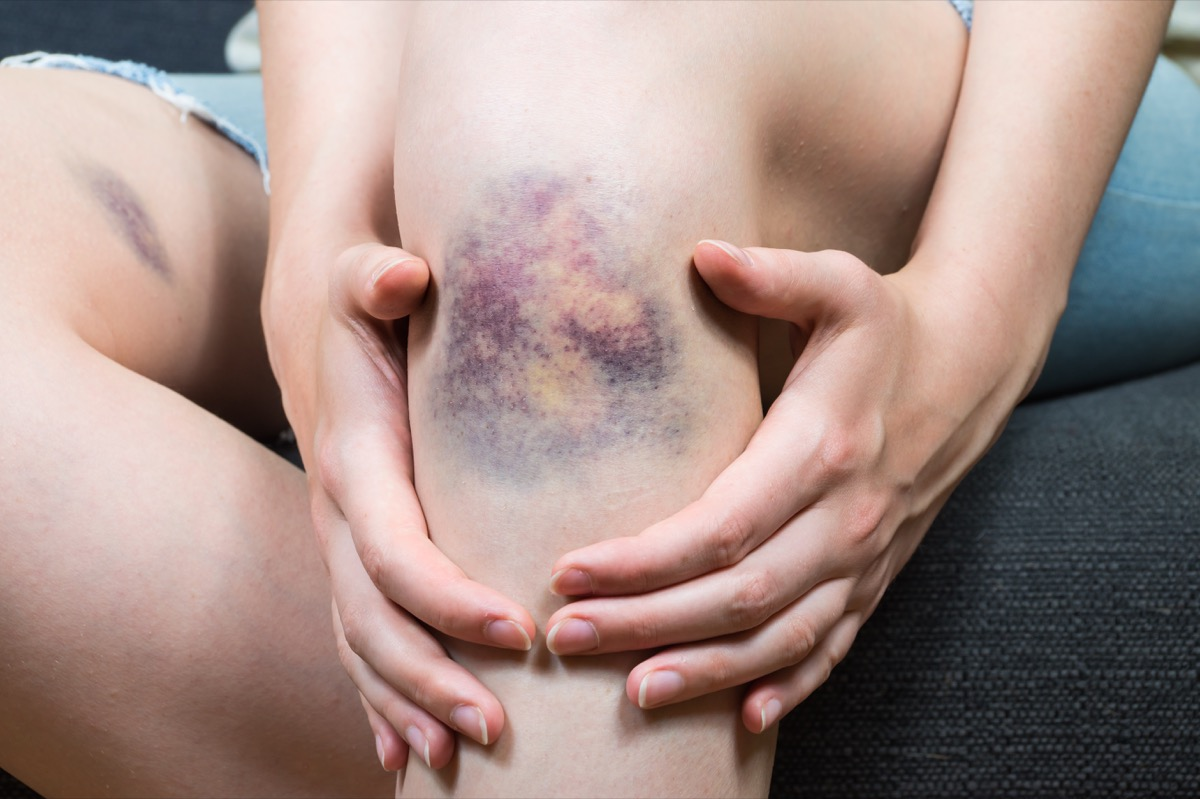 Close up image of female person sitting on sofa and holding in hands wounded leg with hematoma