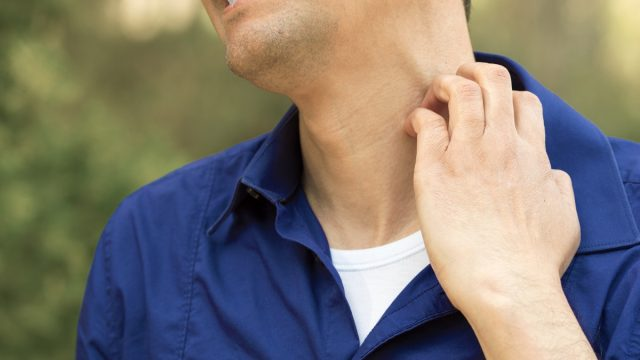 Close-up of man suffering itching scratching neck standing outdoors in a park