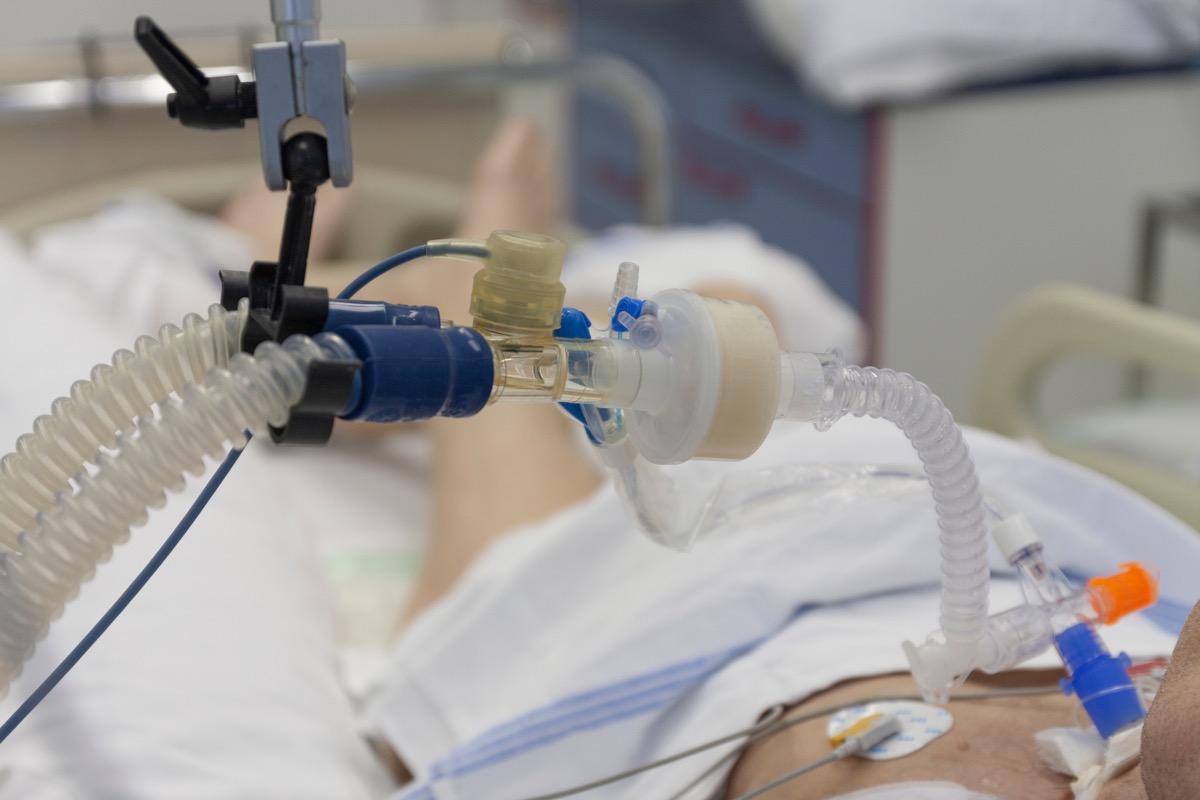 patient using ventilator in hospital