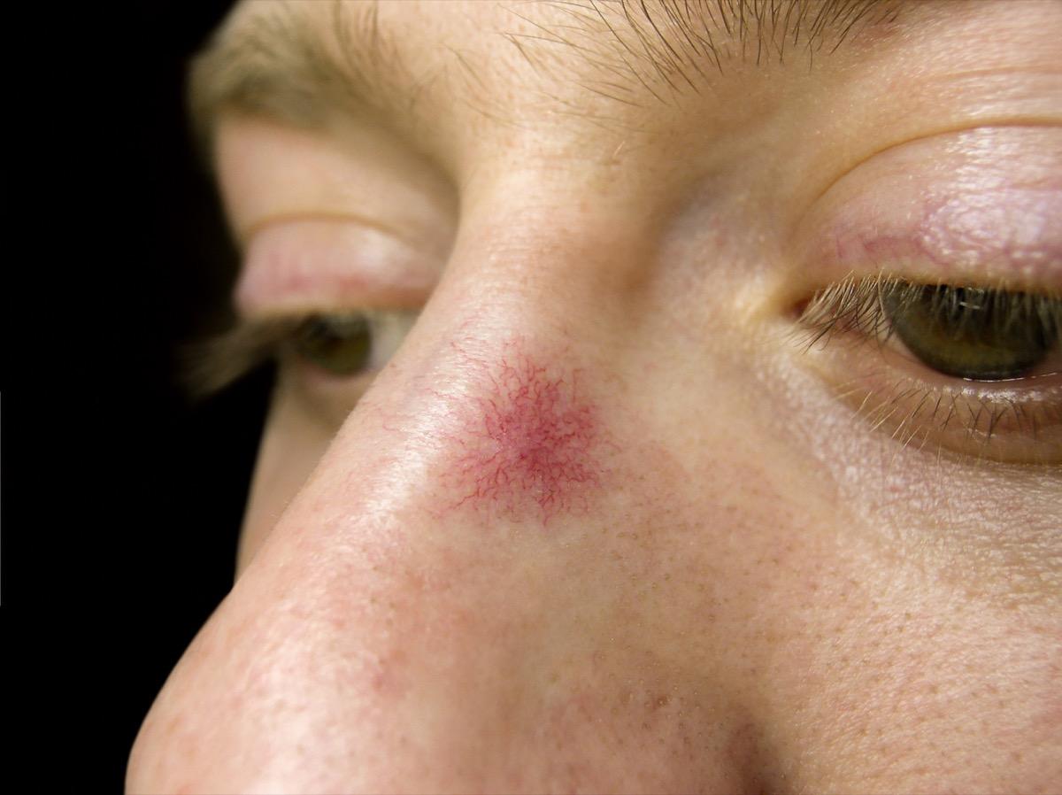 Spider Angioma on skin