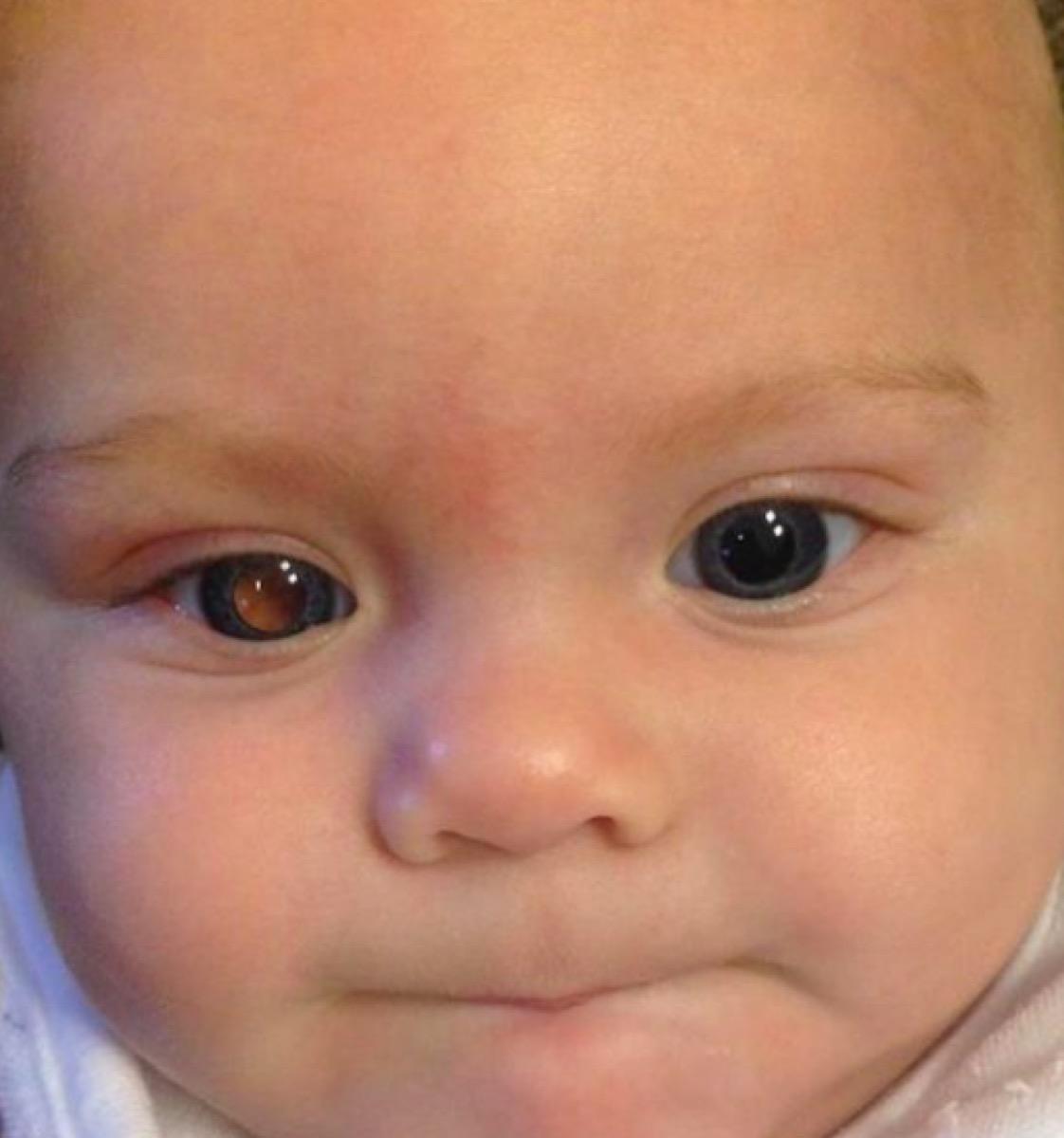 Asher Rock retinoblastoma eye glow