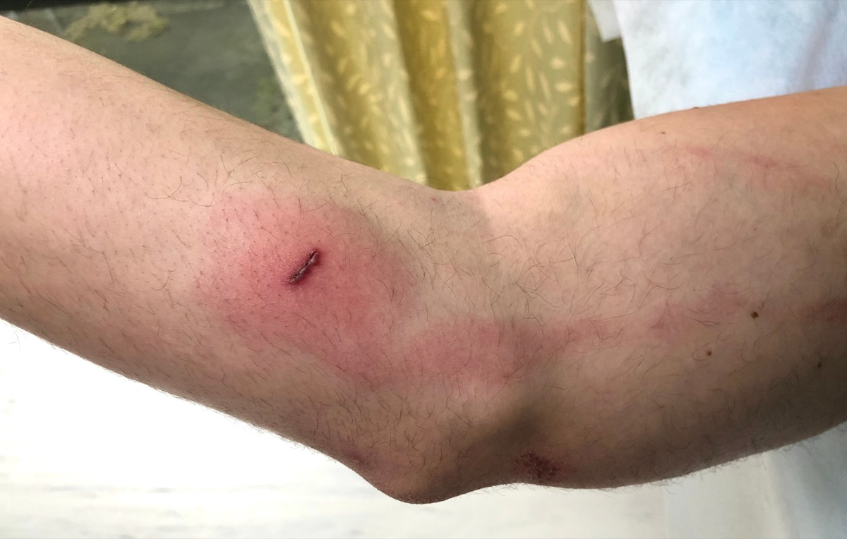 Infectious lymphangitis from a bite wound red streak on arm