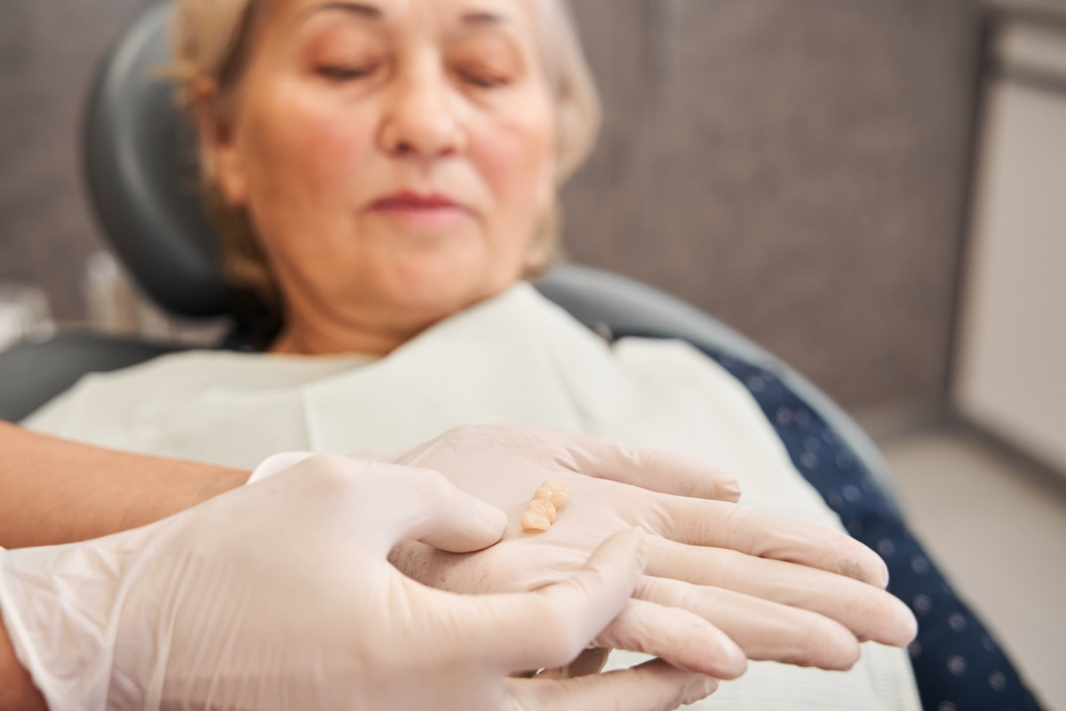 Cropped view of the female dentist holding tooth after extraction. Hand of doctor with loose tooth. Dentistry concept. Woman looking at her miss teeth. Focus at the tooth. Stock photo