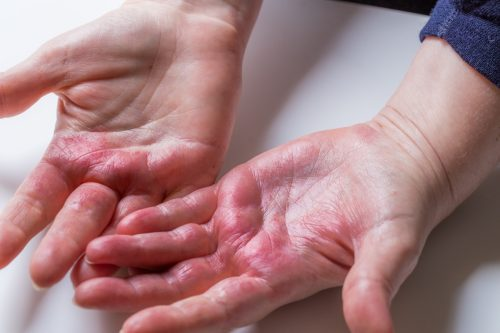 Atopic dermatitis, red, itchy hands with blisters and chapped skin.