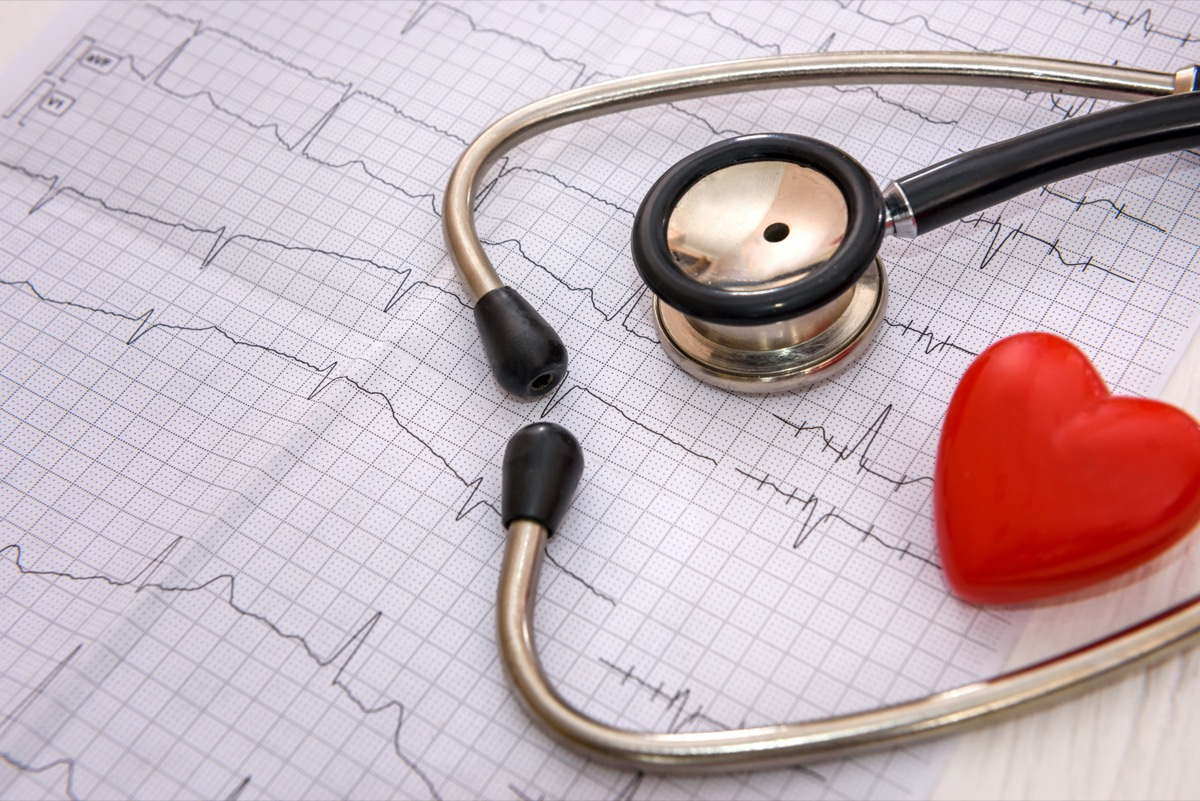 Stethoscope and cardiogram