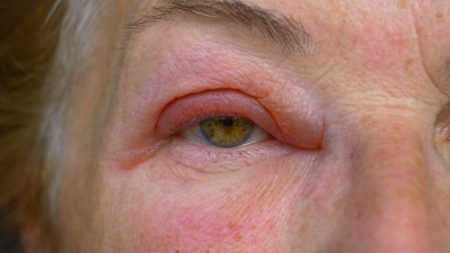 Adult female woke up with horribly tender pink eye.