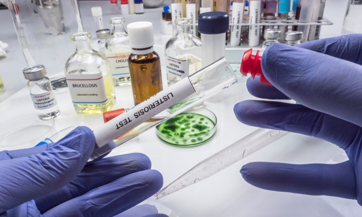 scientist in blue gloves conducting listeria test in lab